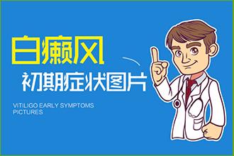 白癜风的病发患者都要哪症状